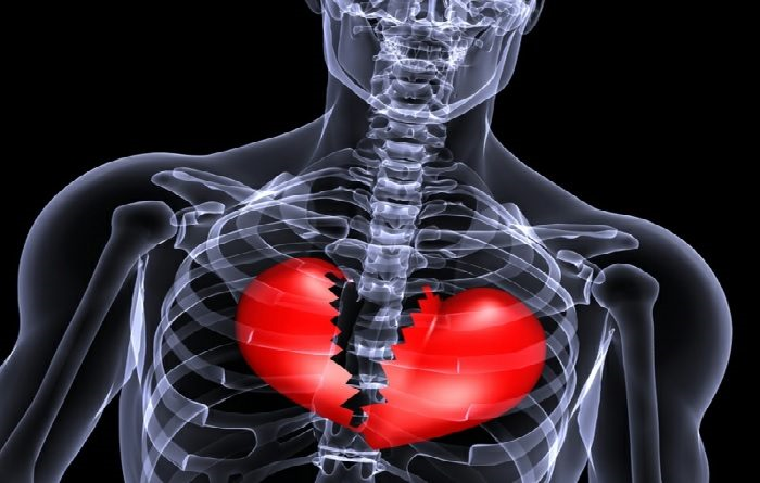 Time Does Not Mend a Broken Heart; Scientists Find Condition Causes Long-Term Damage 38