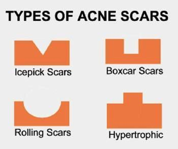 How to Deal With the Scars Of Acne! Learn Some Treatments That'll Help 38