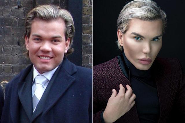 Rodrigo Alves before and after plastics