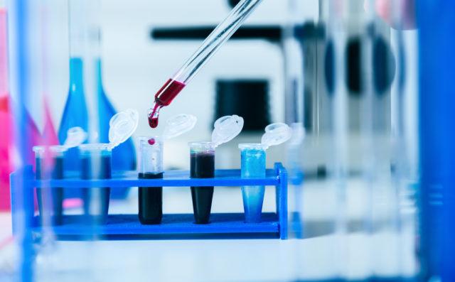 laboratory blood tubes