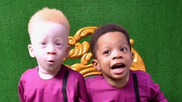 The twin of a dark-skinned baby turned out to be a red-haired albino - what unusual brothers look like 15