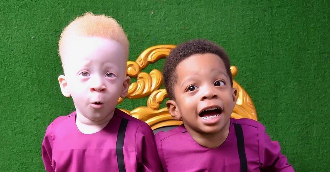 The twin of a dark-skinned baby turned out to be a red-haired albino - what unusual brothers look like 36